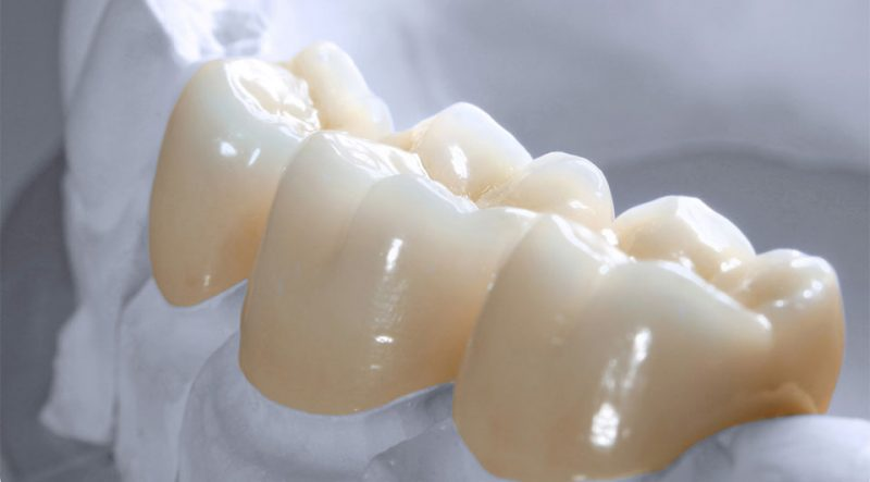featured image for porcelain crown in the Philippines