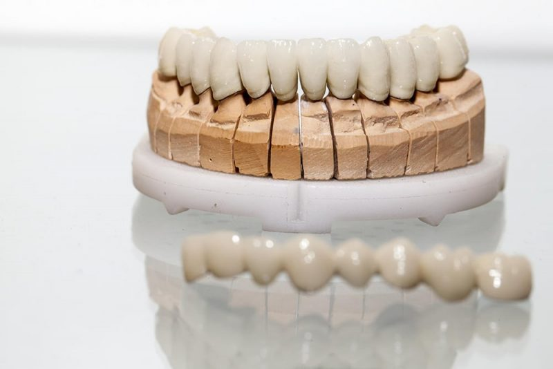 featured image for dental crowns