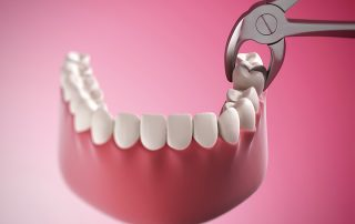 featured image for molar tooth extraction