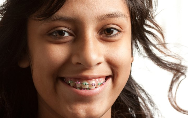 featured image for braces for kids