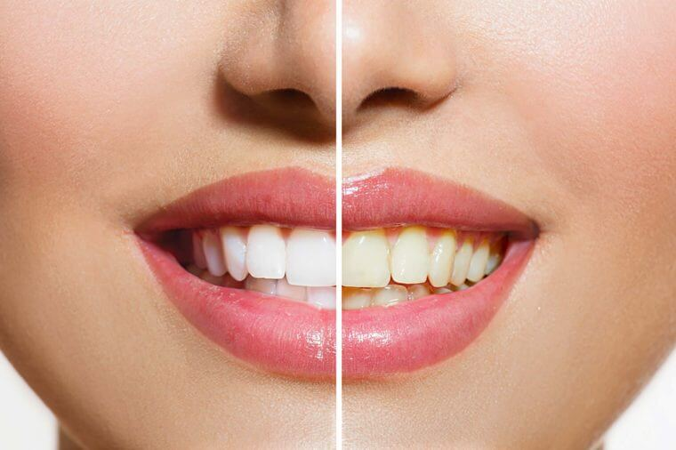 featured image for teeth whitening home remedies