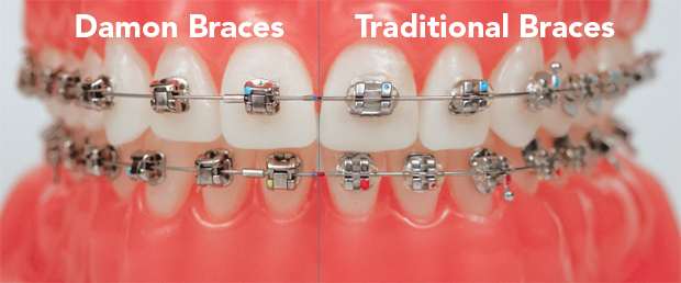 image for braces for kids