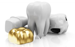 featured image for price of dental crowns in the philippines
