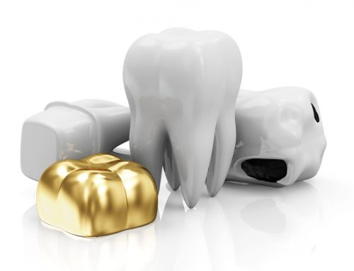 Price of Dental Crowns in the Philippines and More