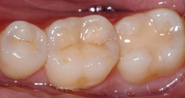 image for price of dental fillings in the philippines