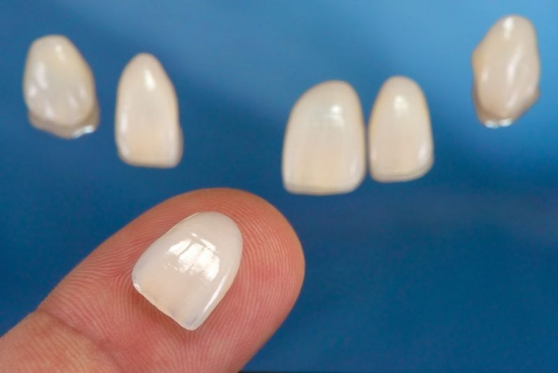 featured image for price of porcelain veneers in the philippines
