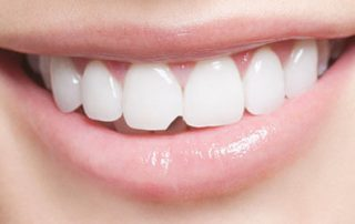 featured image for what to do with chipped teeth