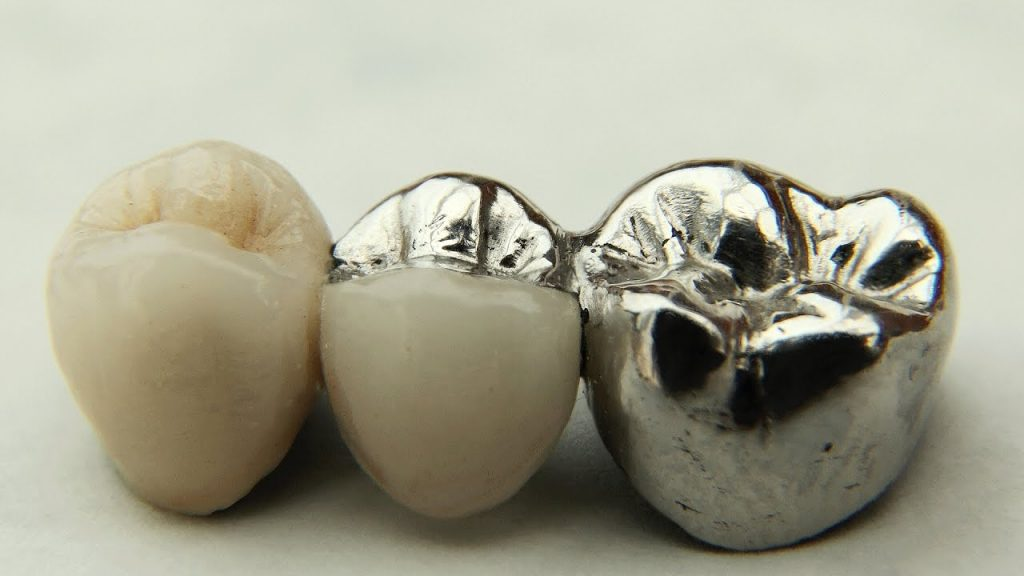 image for metal crown on a tooth