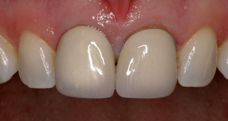 featured image cheap porcelain crowns