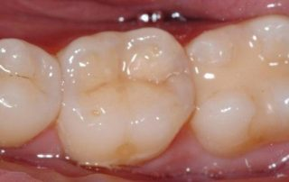 featured image for composite resin fillings cost