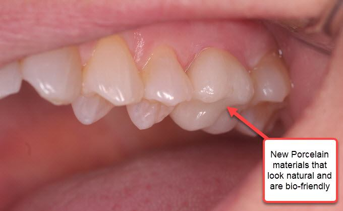 image for how much are porcelain crowns in the Philippines