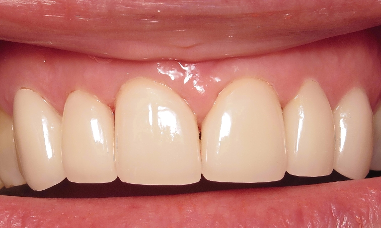 image for cheap porcelain crowns