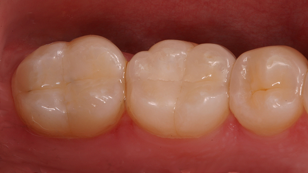 image for composite resin fillings cost