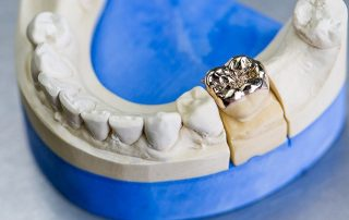featured image for metal crown on a tooth