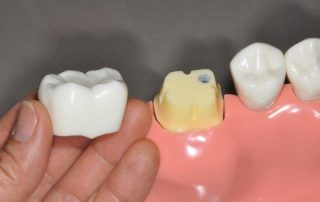 featured image for what is a tooth crown