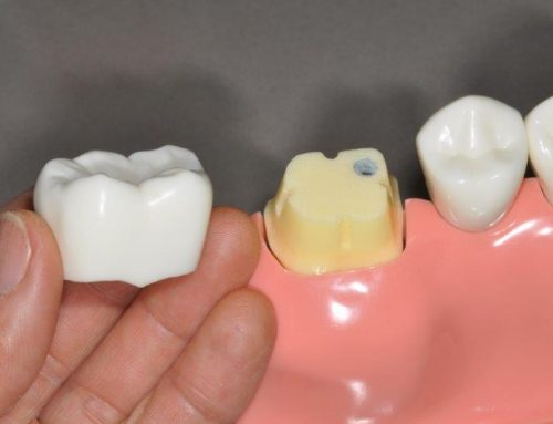 What Is A Tooth Crown? How It Helps