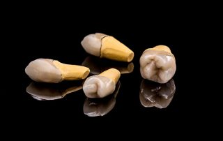 featured image for kinds of dental crowns