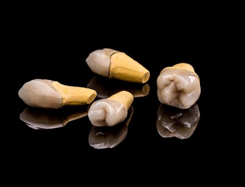 4 Kinds of Dental Crowns You Should Know