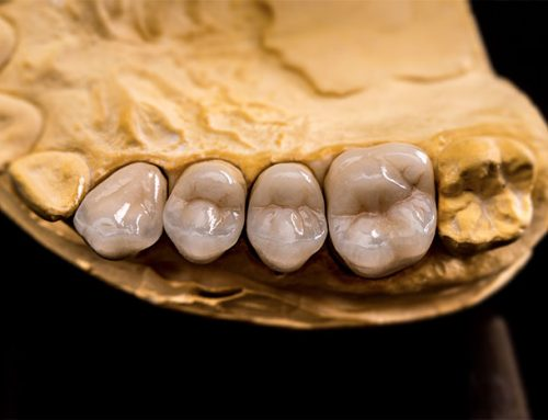 What Is A Dental Crown? Know The Facts