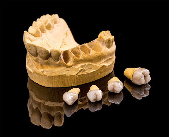 image for What is a dental crown